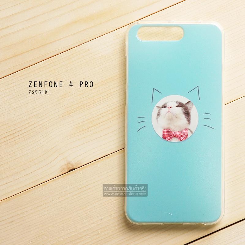 เคส Zenfone 4 Pro (ZS551KL) เคสนิ่ม TPU พิมพ์ลาย แบบที่ 4